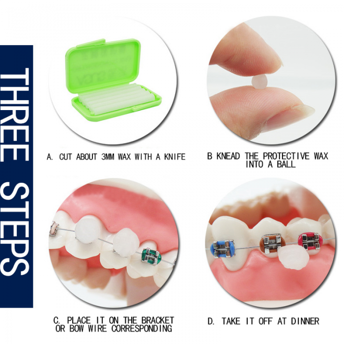 Asus orthodontic wax ортодонтичний віск Мятний