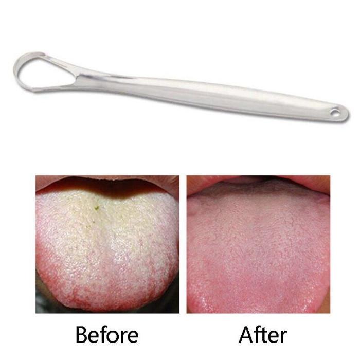 Скребок для язика із нержавіючої сталі