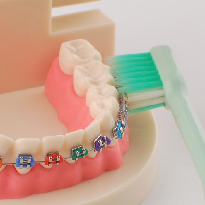 Y-Kelin Orthodontics Toothbrush зубна щітка для брекетів